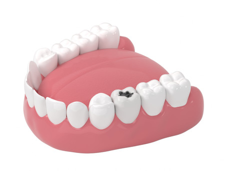 What is Cariogenicity? Learn What Foods Cause Cavities, with Irving, Texas General & Family Dentist
