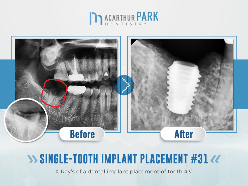 Single-Tooth Implant Placement #31
