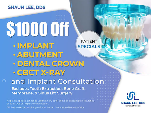 Shaun Lee DDS: Dental Implant and General Dentistry of Auburn