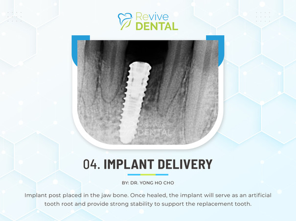 04. Implant Delivery