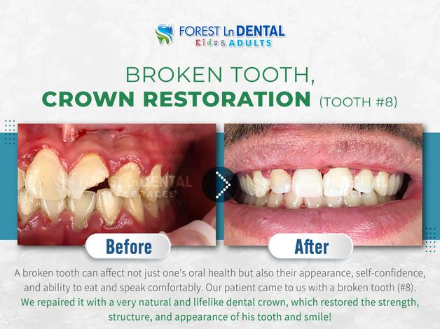 Broken tooth, Crown restoration (Tooth #8)