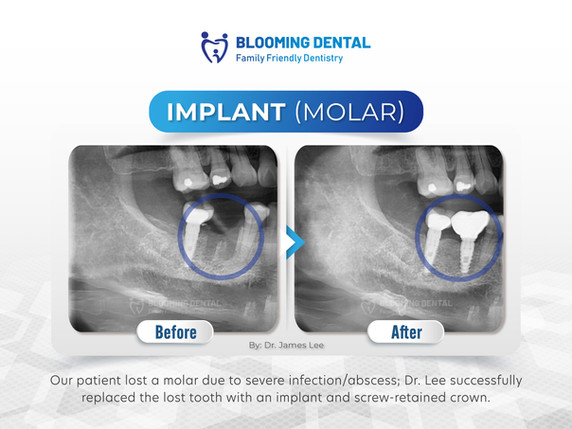 Implant (Molar)