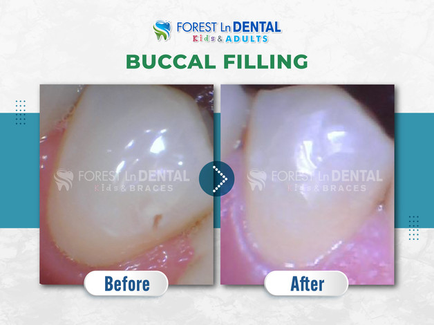 Buccal filling