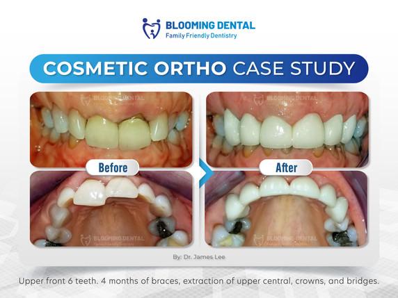 Cosmetic Ortho Case Study