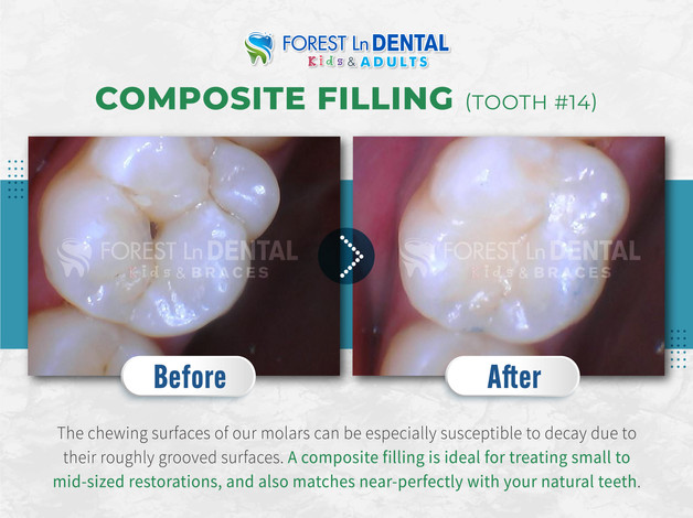Composite Filling (Tooth #14)