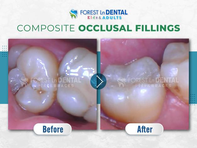 Composite Occlusal fillings