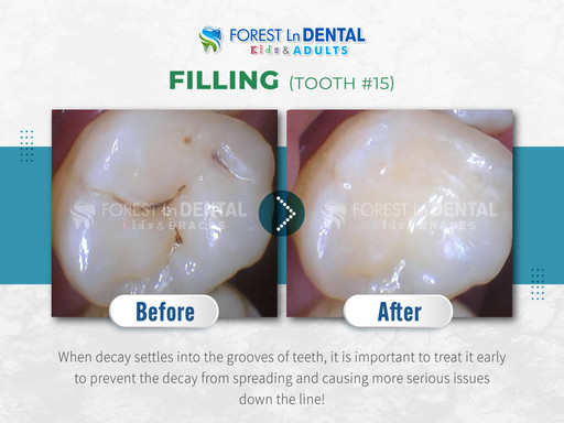 Filling (Tooth #15)