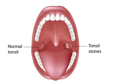 Are Tonsil Stones Giving You Bad Breath? Learn More with General & Family Dentist in Pflugerville,TX