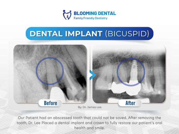 Dental Implant (Bicuspid)