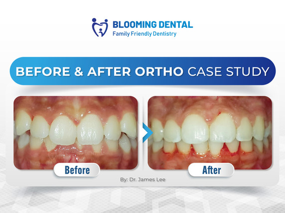 Before & After Ortho Case Study