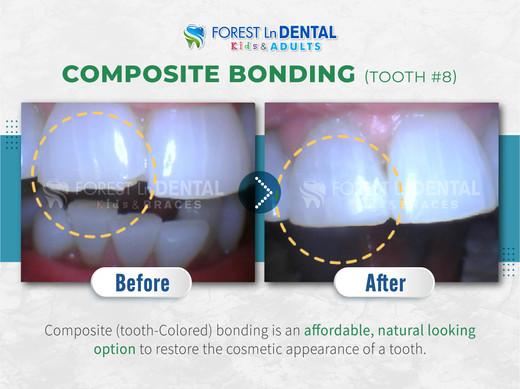 Composite Bonding (Tooth #8)