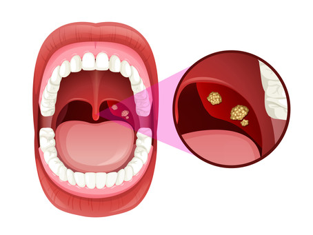 Are Tonsil Stones Giving You Bad Breath? Learn More with General & Family Dentist in Irving, Texas