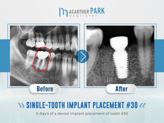 Single-Tooth Implant Placement #30