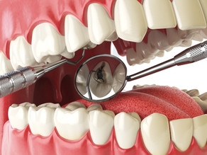 What is Cariogenicity? Learn What Foods Cause Cavities, with Mckinney, TX General & Family Dentist