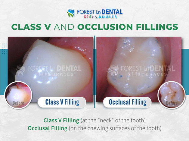 Class V and Occlusion Fillings