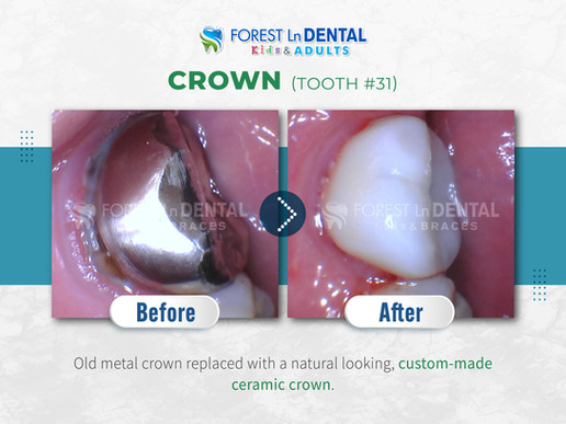 Crown (Tooth #31)