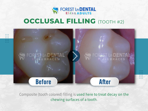 Occlusal Filling (tooth #2)