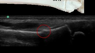 症例〈橈骨遠位端部若木骨折〉