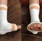 症例〈前距腓靭帯断裂〉