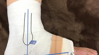 足の捻挫vol.5「適切な処置とは?」