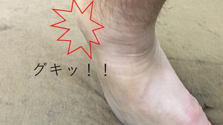 足の捻挫vol.4「後遺症はどんな症状?」