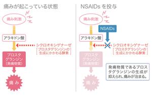 NSAIDs効果