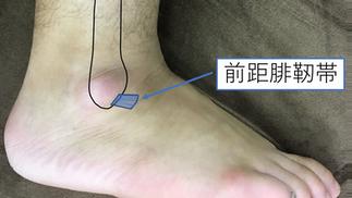 足の捻挫vol.2「誤診されやすい3つの理由」