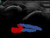 症例〈腓骨遠位端部裂離骨折〉