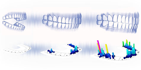 bite-progression-bars-white-gradient-bac