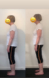 Posture Ellie Before and After Postural