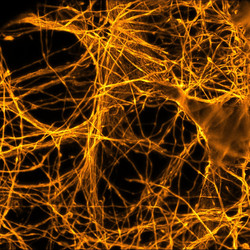 Microtubules (STED)