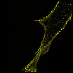 P/Q calcium channels (STORM)