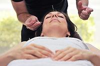 Acupuntura - Essentia Clinic