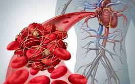 Oclusão arterial aguda – você sabe o que é?
