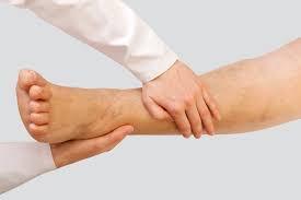 Inchaço nas pernas –Problemas de circulação