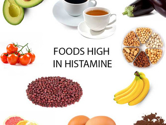 What is a histamine Intolerance?