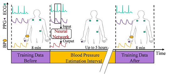 Cuffless Blood Pressure Monitoring