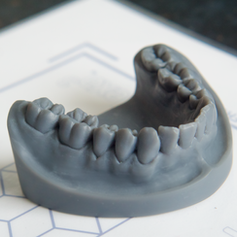 Dental Impression Model