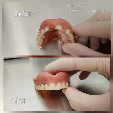 Denture Repair May 2018.jpg