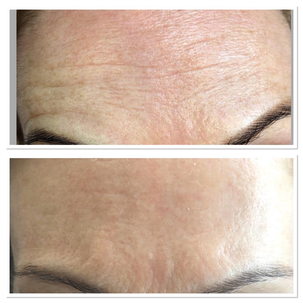 Plasma Forehead