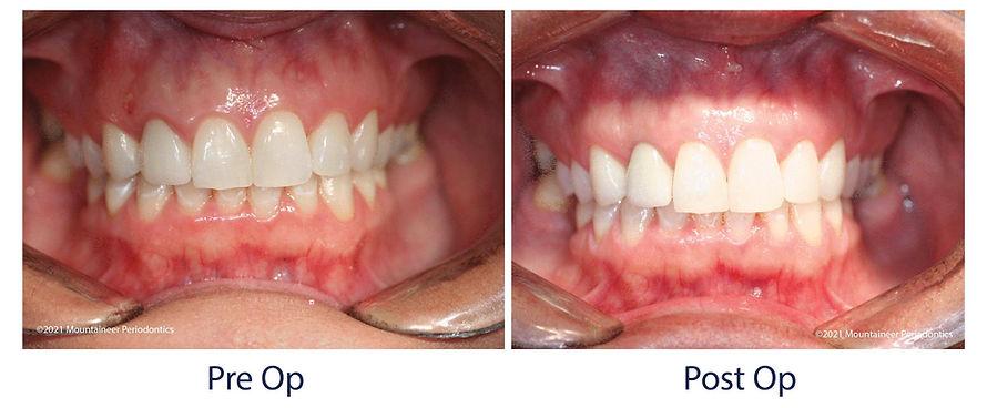 Implant Crown Mountaineer Periodontics WV
