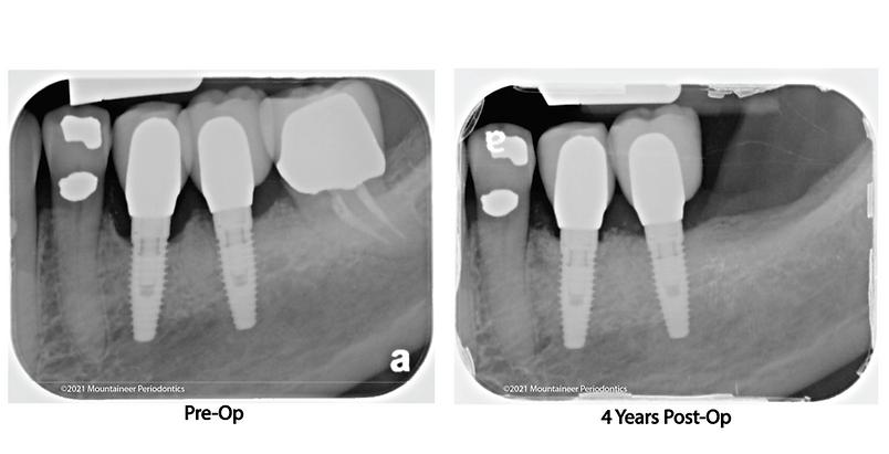 Bone Grafting Mountaineer Periodontics