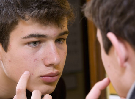 Can Teenagers Prevent Acne?