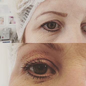 eyelid-tightening-800x800.jpg
