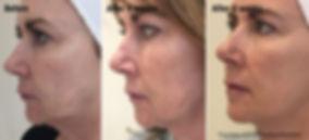 FACE2-DR-EMMA-RAVICHANDRAN.jpg