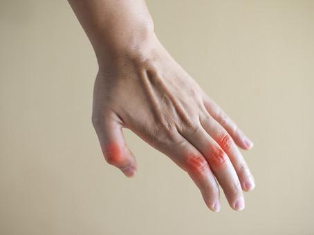 Early Arthritis