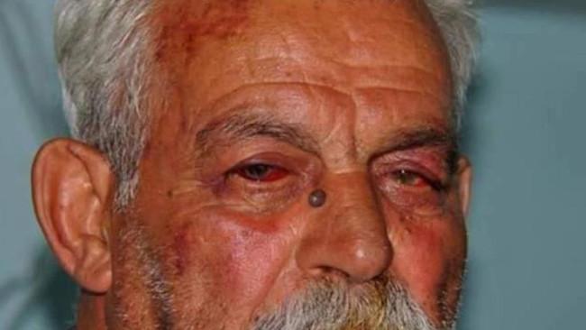 Καταδικάστηκε ο 80χρονος που ξυλοκόπησαν οι μπάτσοι για τις Σκουριές