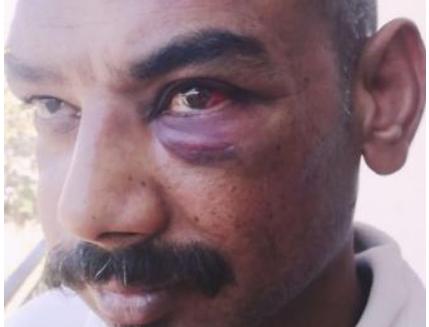 Μετανάστης δέχθηκε φασιστική επίθεση στονΑσπρόπυργο μεσιδερογροθιά