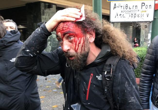 Οι φασιστικές επιθέσεις του «αγνού πατριωτικού συλλαλητηρίου»..