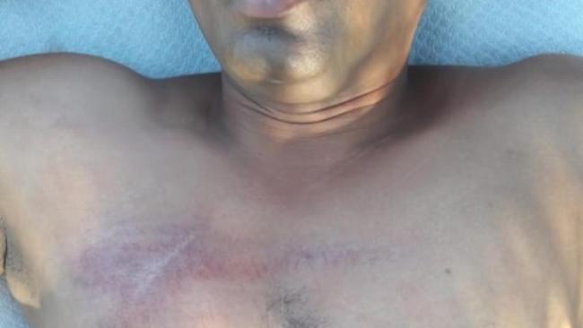 Εργοδότης επιτέθηκε σε μετανάστη εργαζόμενο στη Μύκονο
